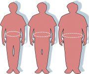 P09-Obezitatea- cabinet medical Endocrinologie Diabet Craiova